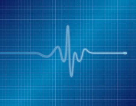 Single pulse blue EKG (ECG)