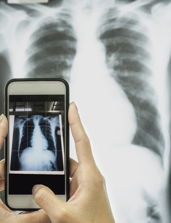 x mass: doctor is using mobile smart phone taking a photo film x-ray CXR AP to connect with medical treatment at a hospital or clinic.,healthcare and technology concept.,professional doctor working at office desk. Stock Photo
