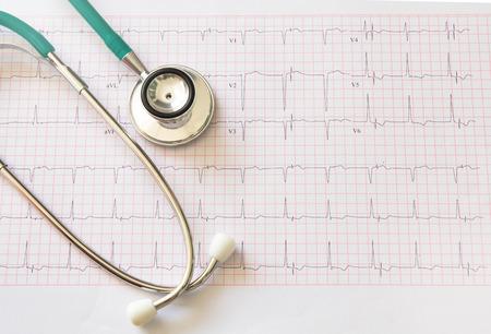 electrocardiograma: Estetoscopio y un electrocardiograma médica
