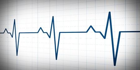 electrocardiogram: Ondata di grafo semplice ispirato da monitor audio o di impulso su sfondo bianco.