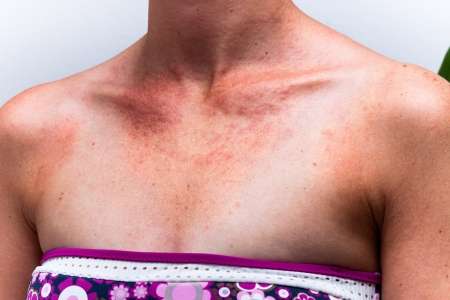 tanned body: Detail of female sunburnt skin chest with allergic reaction. Stock Photo