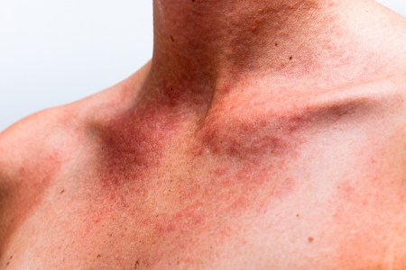 Close up of female sunburnt skin neck with allergic reaction. Stock Photo