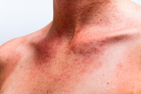 Gros plan sur le cou brûlé par le soleil avec la peau des femmes réaction allergique.