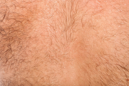 hairy male: Close up of hairy skin on male back Stock Photo