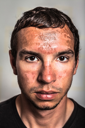 Sunburn skin peeling on male face caused by extended exposure on direct sun.
