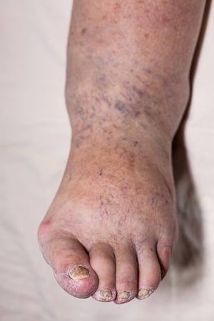 şişme: Hasarlı ayak ve tırnaklar ile hasta yaşlı kadın şişmiş bacak detay.