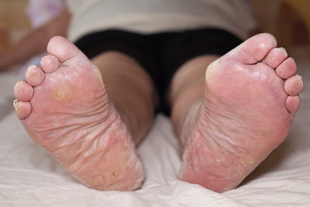 Detail of ill senior female swollen legs with damaged toes and nails. Stock Photo