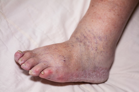 Detail of ill senior female swollen leg with damaged toes and nails.