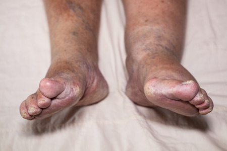 foot fungus: Detail of ill senior female swollen legs with damaged toes and nails. Stock Photo