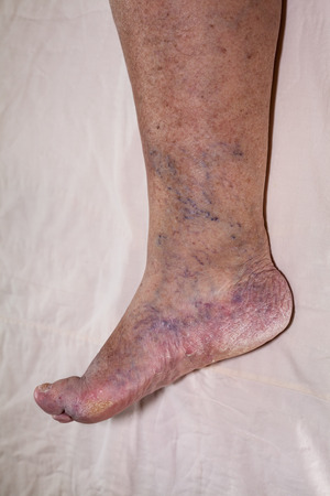 Particolare del malato femmina senior gamba gonfia con dita danneggiate e chiodi. Archivio Fotografico - 35972523