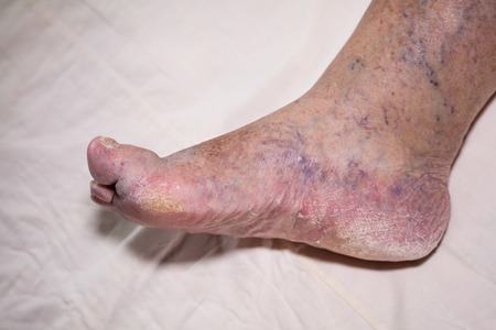 fungal: Detail of ill senior female swollen leg with damaged toes and nails.