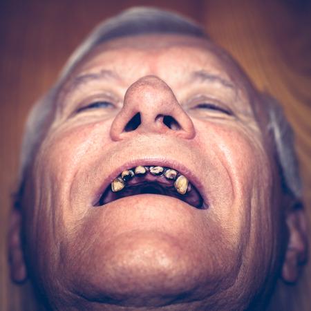 Close-up van een oude man gezicht met lelijke tanden. Stockfoto