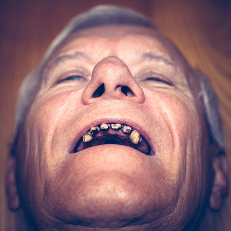 ugly mouth: Closeup of an old man face with ugly teeth.