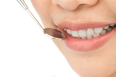 Healthy woman teeth and a dentist mouth mirror Stock Photo - 13629520