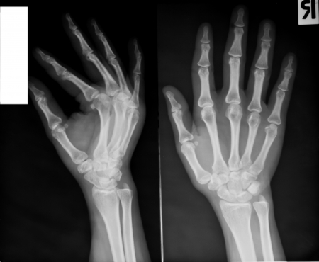 radiological: collection of x-ray
