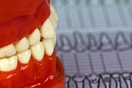 Dental tools and equipment on dental chart photo