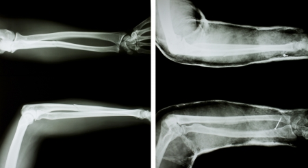 splint: X-ray of both human arms (normal arms and arms with splint).