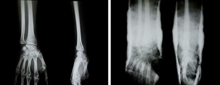 splint: Radiograf�a de ambos brazos (brazos humanos normales y los brazos con una f�rula).