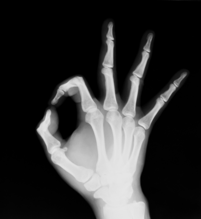 X-ray of both human hand (OK!) photo