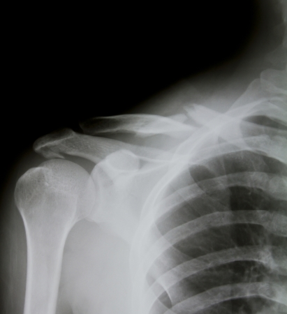 X-ray of human shoulder (broken shoulder) photo