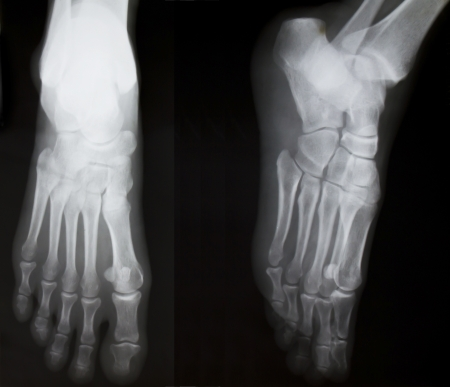 X-ray of both human feet photo