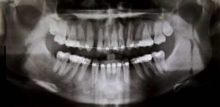 Panoramic dental X-Ray photo