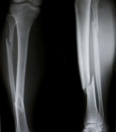 X-ray of both human legs (broken legs) photo