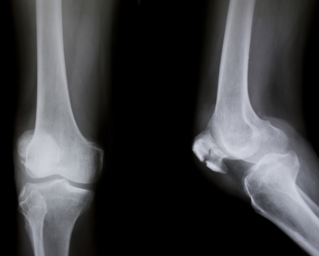X-ray of both human knee (broken knee) photo