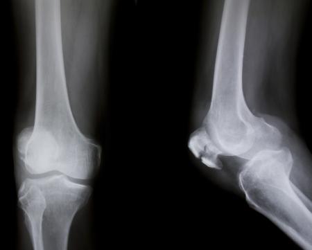 broken knee: X-ray of both human knee (broken knee)