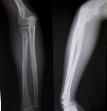 X-ray of both human arms (broken arm) Stock Photo - 17490249