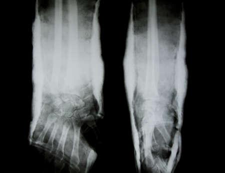 splint: Radiograf�a del brazo humano con una f�rula de brazo.