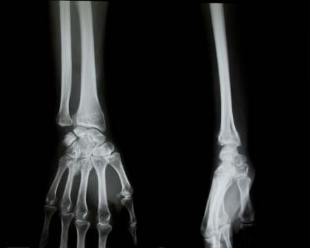 radiological: X-ray of both human arms and hands