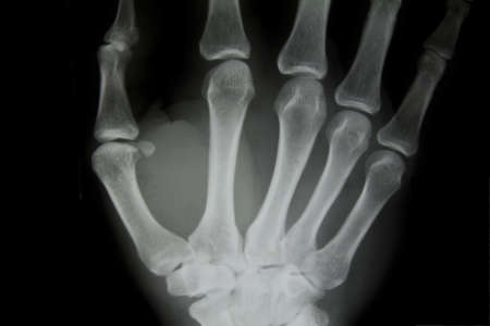 X-ray of human hand. photo