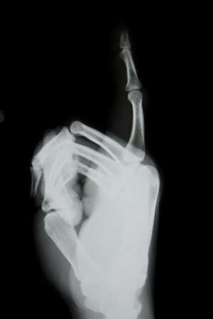 fingertip: X-ray of human hand (broken fingertip).