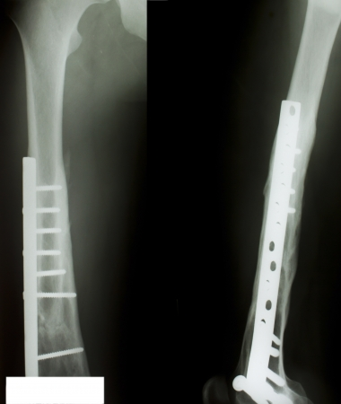 X-ray of both human legs (fractures). Stock Photo - 17490215
