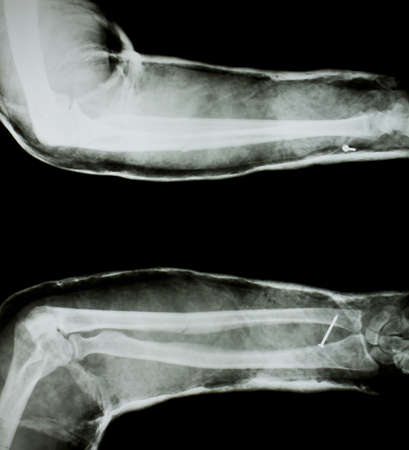 splint: X-ray of human arm with arm splint.