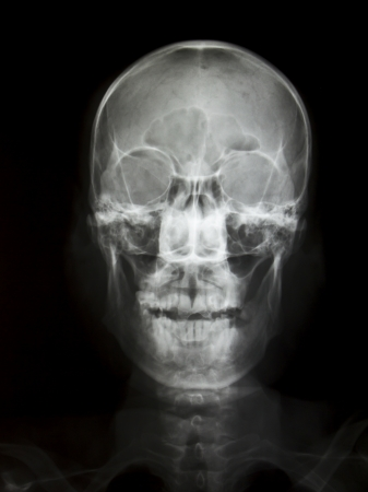 Front face skull x-ray image photo