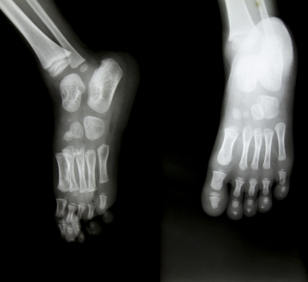 X-ray of both human feet. Stock Photo - 20154306
