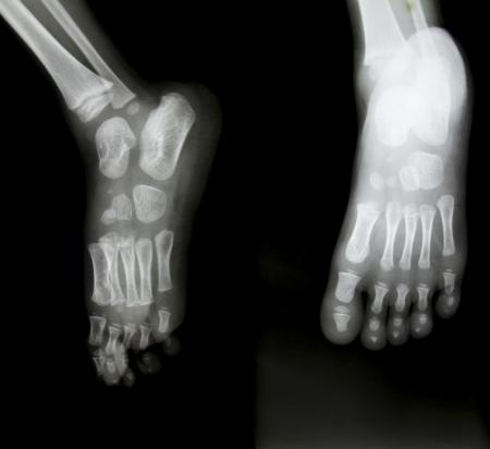 X-ray of both human feet. Stock Photo - 20154306