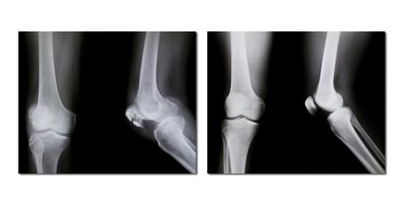 broken knee: collection of x-ray (broken knee, normal knee)