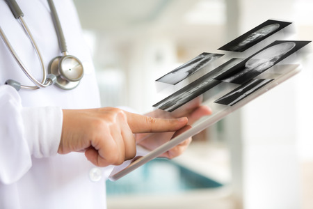 healthcare professional: Doctor using tablet computer with screen of x-ray out