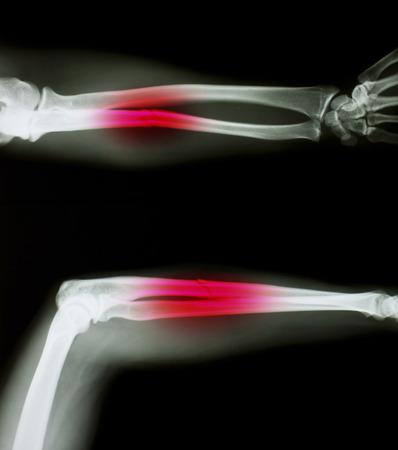 X-ray of both human arms. photo