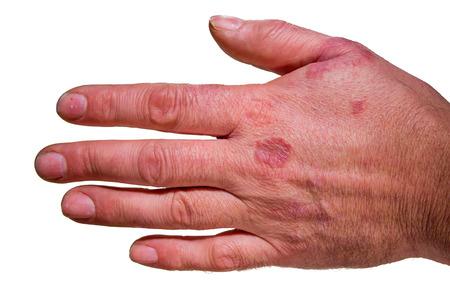 Human hand with rash  eczema Isolated on white Stock Photo