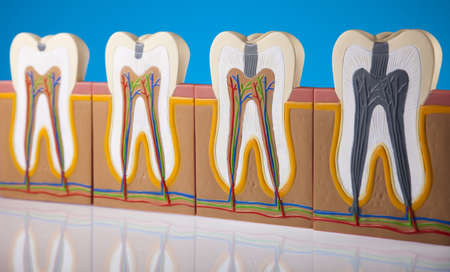 clean arteries:  Tooth anatomy