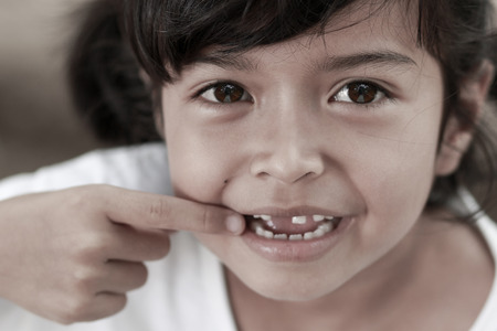 rotten teeth: Little child with broken teeth  Stock Photo