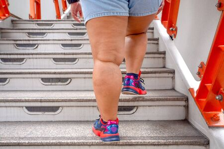 fat woman to step up the stairs