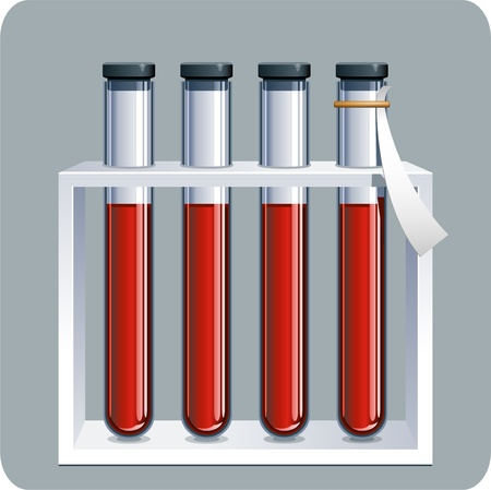 infected: Vector illustration of Blood samples. EPS 8