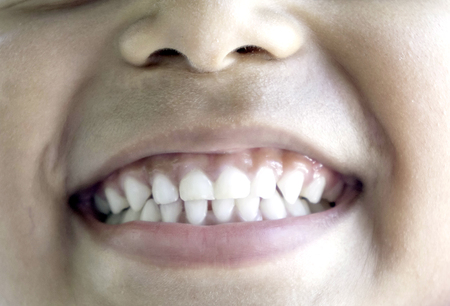 Good dental health of children, taking great care not to eat too much sweet Stock Photo