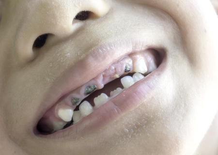 Oral disease in children in Asia From eating too many sweets cause tooth decay