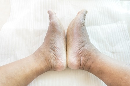 Foot fungus is caused by dermatophytes water frequently